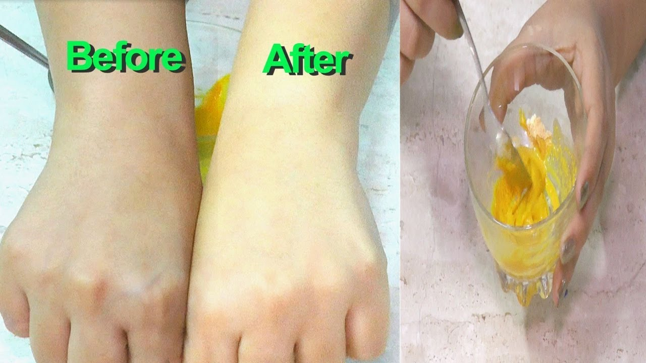How To Remove Sun Tan Instantly - Sun Tan Removal Home Remedies