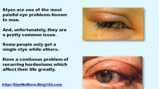 stye on eye treatment for stye in eye eye stye home remedies