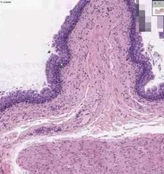 Shotgun Histology Bladder