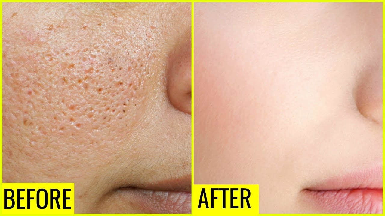 Image result for How to Get Rid of Large OPEN PORES Permanently | Anaysa