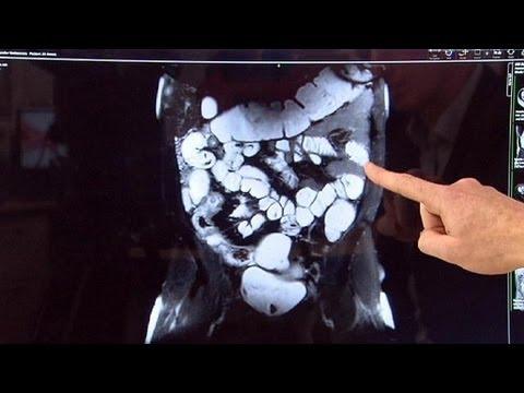Болезнь Крона: компьютерные методы диагностики - futuris