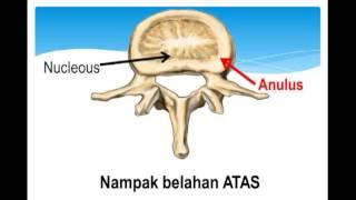 Alasan Postur Anda BUNGKUK Dan Cara Memperbaikinya.