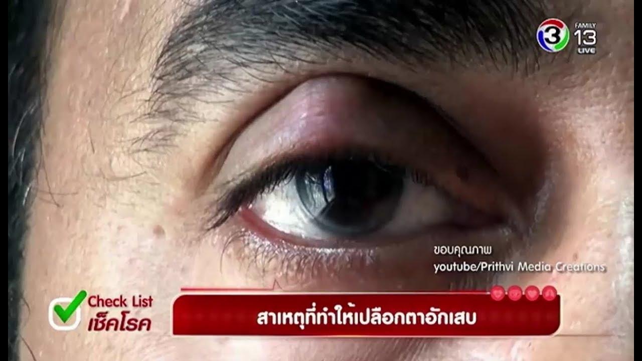 ชั่วโมงสร้างสุข | Check List เช็คโรค : สาเหตุที่ทำให้เปลือกตาอักเสบ | 16-01-61 | Ch3Thailand
