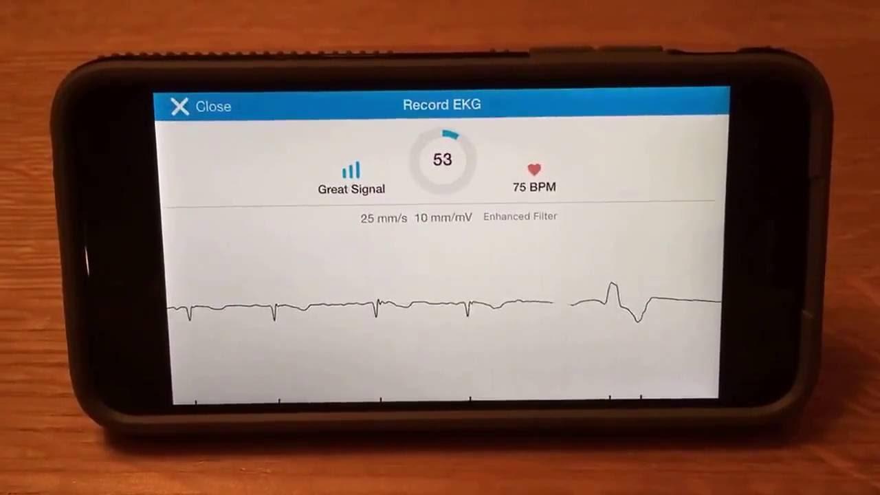 KardiaMobile EKG App