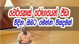 වෙරිකොස් රෝගයෙන් පීඩා විදින ඔබට මෙන්න විසදුමක් | Piyum Vila | 24 - 08 -2020 | Siyatha TV Thumbnail
