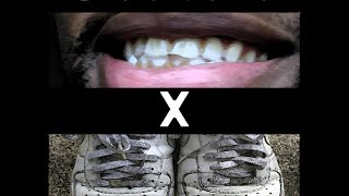 #ShortNSweet Album Review - Stained Teeth x Dirty Forces