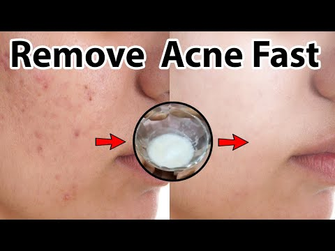Home Remedy - How To Remove Acne Scars From Face - DIY