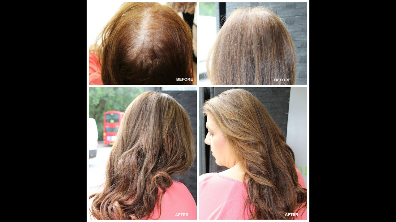 Hair extensions for thin hair london
