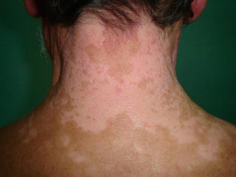 Vitiligo Treatment 2013