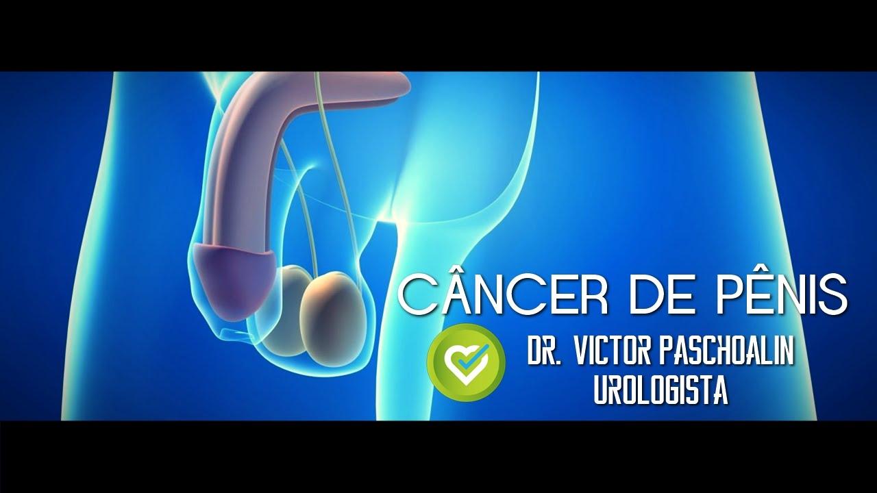 primeros sintomas de cancer de pene