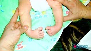 Здоровье  Врожденная косолапость  Устранение дефекта (02 04 2017)