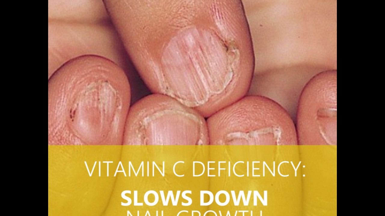 Vitamin Deficiency Can Cause Brittle Nails