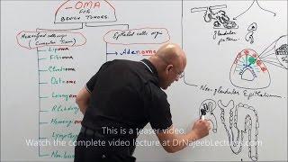 Neoplasia Nomenclature - Benign Tumors - Adenoma - Papilloma