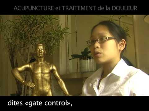 hqdefault - Acupuncture