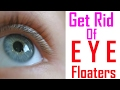 13 WAYS TO GET RID OF EYES Floaters | How To Get Rid Of Eye Floaters