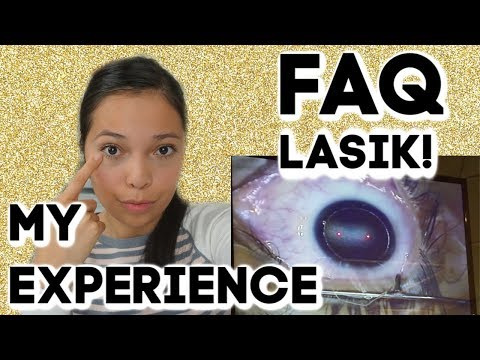 FAQ ABOUT LASIK EYE SURGERY!! MY LASIK EXPERIENCE!!