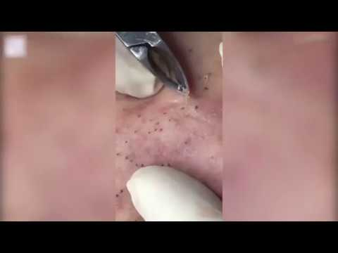 Disgusting moment patient has hundreds of blackheads removed
