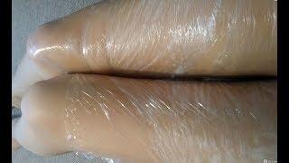 Толстые Ноги. Наконец Есть Решение