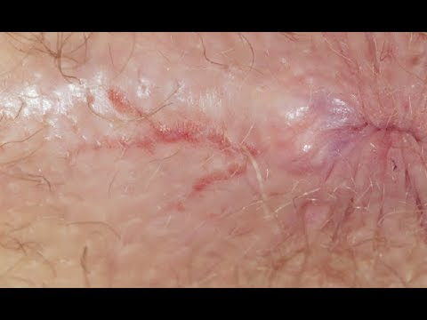 What is anal fissure? | Anal fissure symptoms, causes, treatment | Health tips