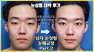 ★눈성형 대박 후기☆ 무쌍 눈매교정 6개월 경과 전후변…