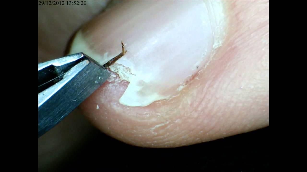 How To Extract Splinter From Under Fingernail