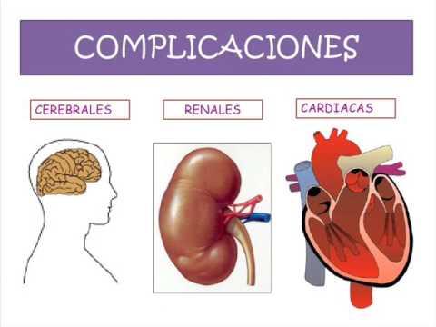 hipertension arterial y funcion sexual - YouTube