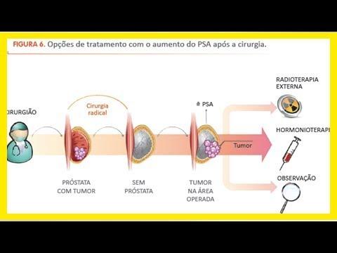 vasectomia y cancer prostata