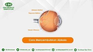 Penyebab terjadi Ablasio Retina - PENYAKIT MATA.