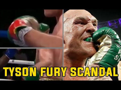 TYSON FURY SECRET SCANDAL EXPOSED ?