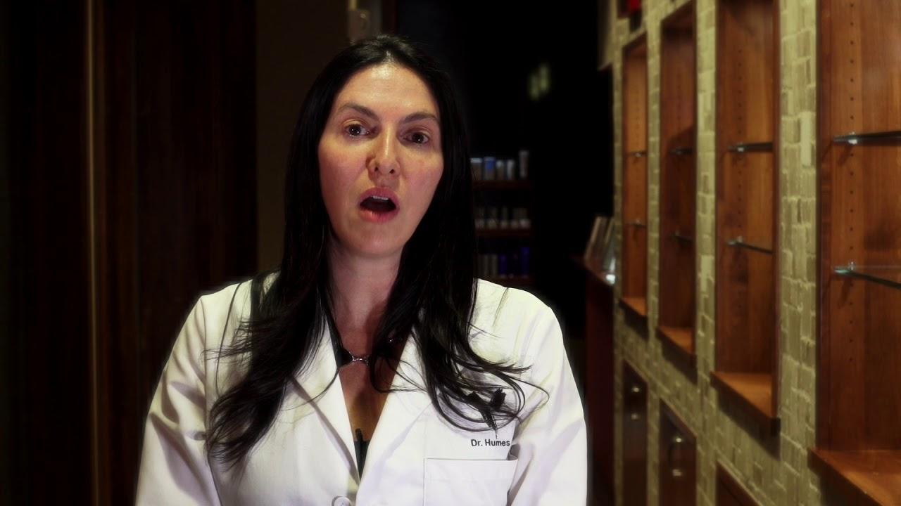 Hyperpigmentation & Brown Spots Treatment | Chicago