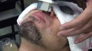 Repeat youtube video ひげ脱毛の成果と行程 Male Facial Hair Removal