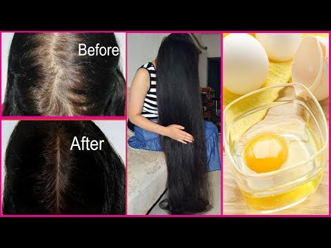 EXTREME HAIR GROWTH MASK FOR RAINY SEASON ☔ | STOP HAIR FALL | GET VERY FAST LONG & THICKEN HAIR