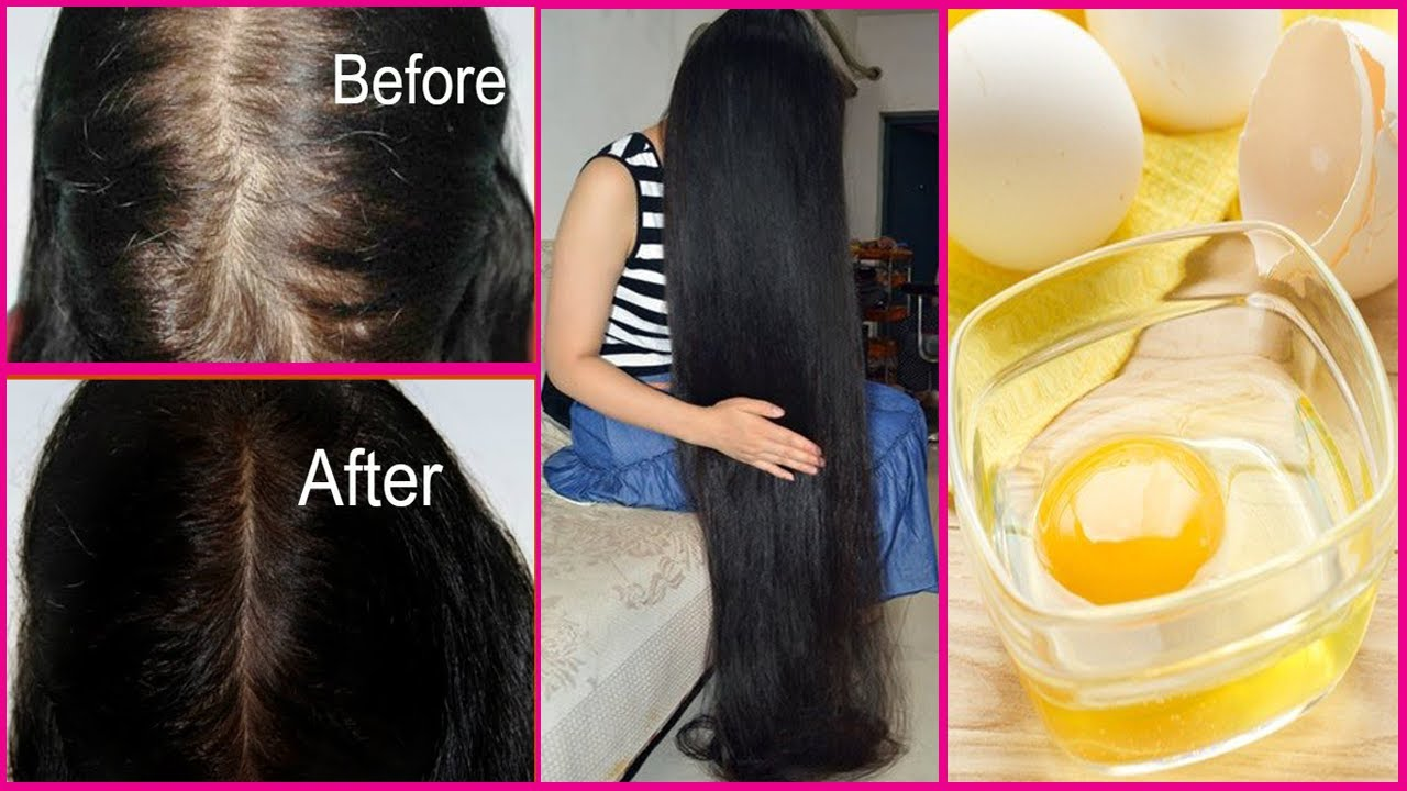 How To Thicken Hair Fast Naturally