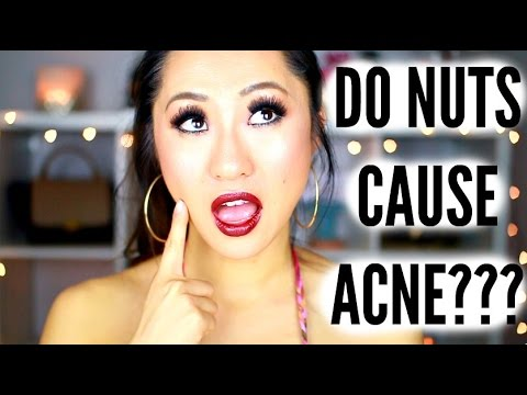 hqdefault - Can Pine Nuts Cause Acne