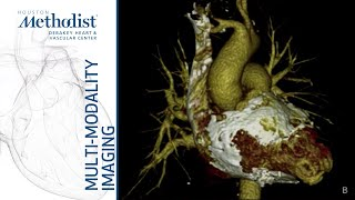 Pericardial Diseases: CT/MRI/Echo-Complementary or Redundant? (Kurrelmeyer, MD; Nabi, MD) 12/17/19