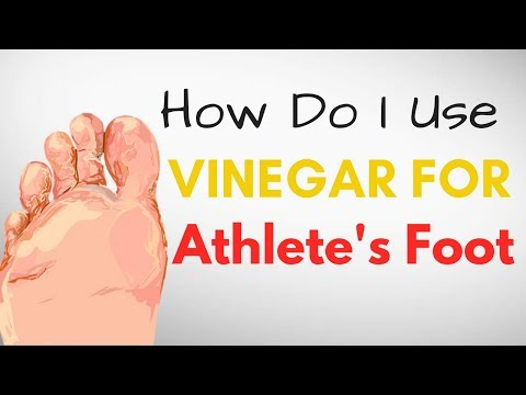 How Do I Use VINEGAR for Athlete's Foot Treatment – 9 BEST Remedies
