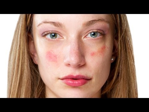 acne-treatment---birth-control-pills