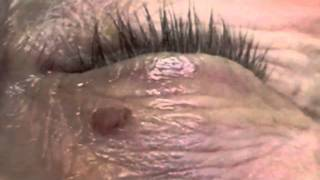 Removal of Unwanted Eye Lesion