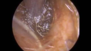 231 - Deep & Dry Blocked Ear Wax Removed off Eardrum using Endoscopic Ear Microsuction