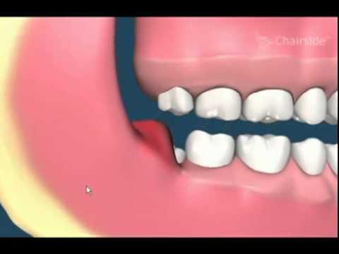 20 lik diş çekimi,  gömülü diş, yirmi yaş dişleri nasıl çekilmektedir.