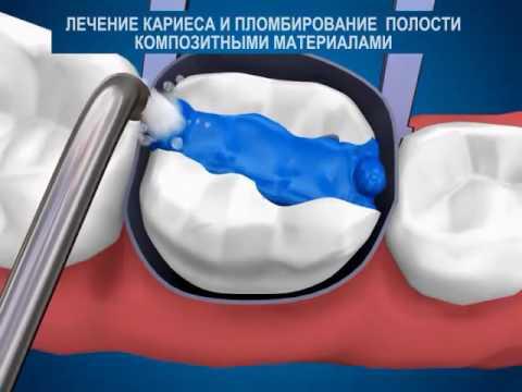 Постановка пломбы, лечение кариеса зубов.