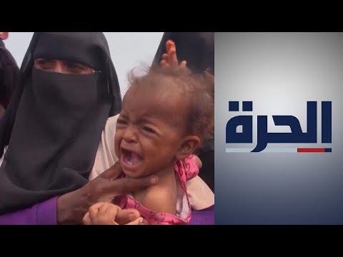 حرب اليمن.. نزوح الملايين وسوء تغذية وغياب التعليم وتفشي كورونا  - نشر قبل 12 ساعة