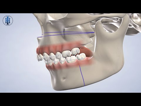 jaw-surgery-in-lubbock-tx-|-hill-&-ioppolo-oral-&-dental-implant-surgery-of-lubbock