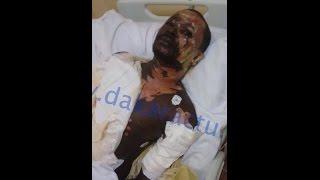 Babacar Mbaye, ébouillanté par son épouse témoigne...