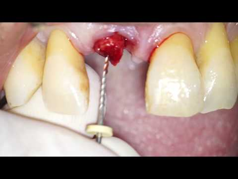Atraumatic Root Extraction by means of an endodontic file - Dr Fabio Cozzolino