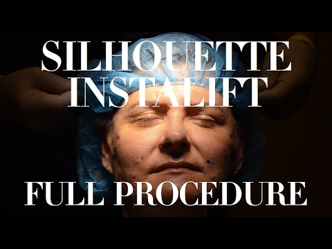Silhouette Instalift Full Procedure - Delray Beach Dermatolo