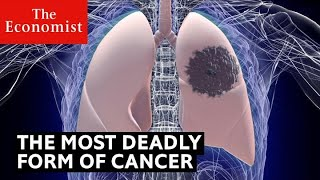 How to detect the deadliest form of cancer | The Economist