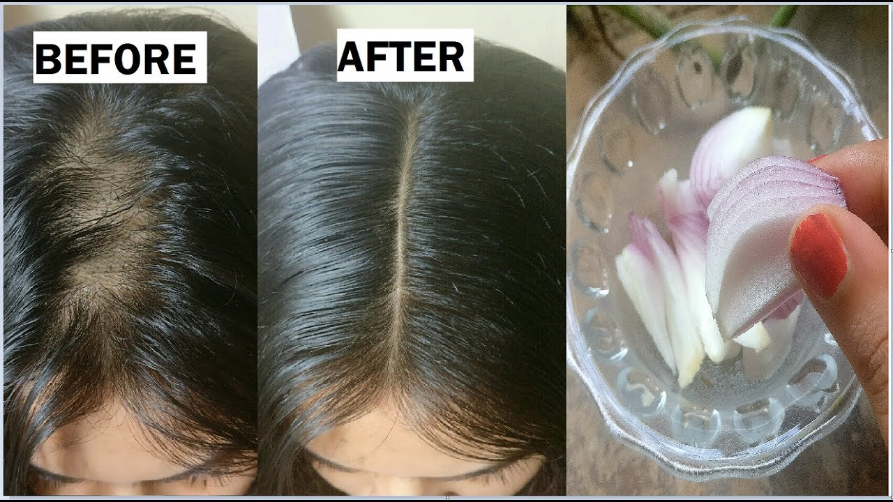Onion & Coconut oil for Extreme HAIR GROWTH in 30 Days to ...