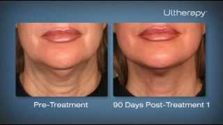 Ultherapy: Before and After Photos, Testimonials from Patients, and a Treatment Demonstration Thumbnail