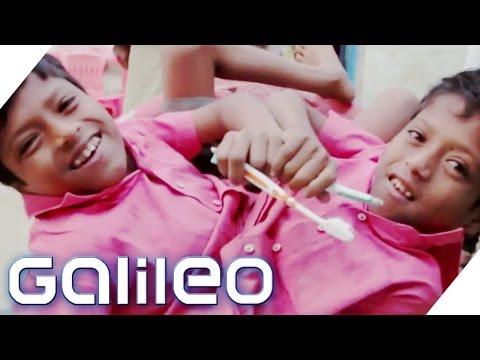 Das einzigartige Zwillingsduo aus Indien Galileo ProSieben